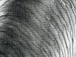 Le moyen pour la sortie des cheveux chvartskopf