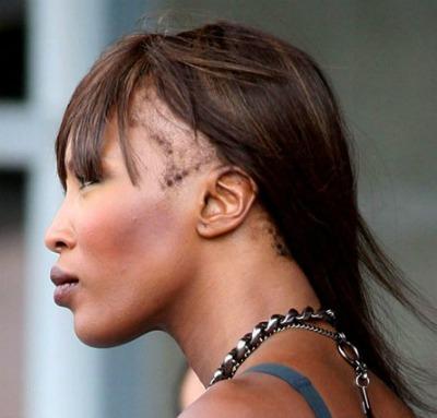 Les moyens pour lamélioration de la croissance des cheveu sur la tête